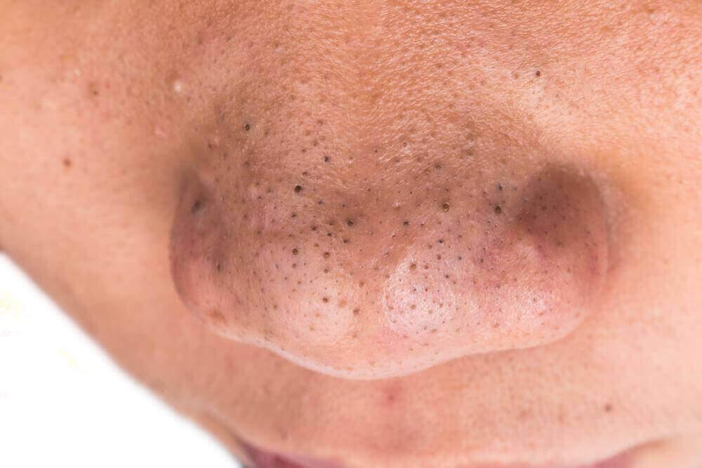 Svarta prickar på näsan