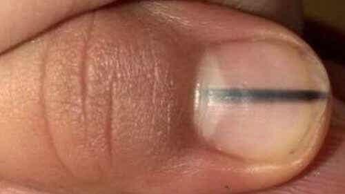 Svart linje på nageln kan vara tecken på cancer