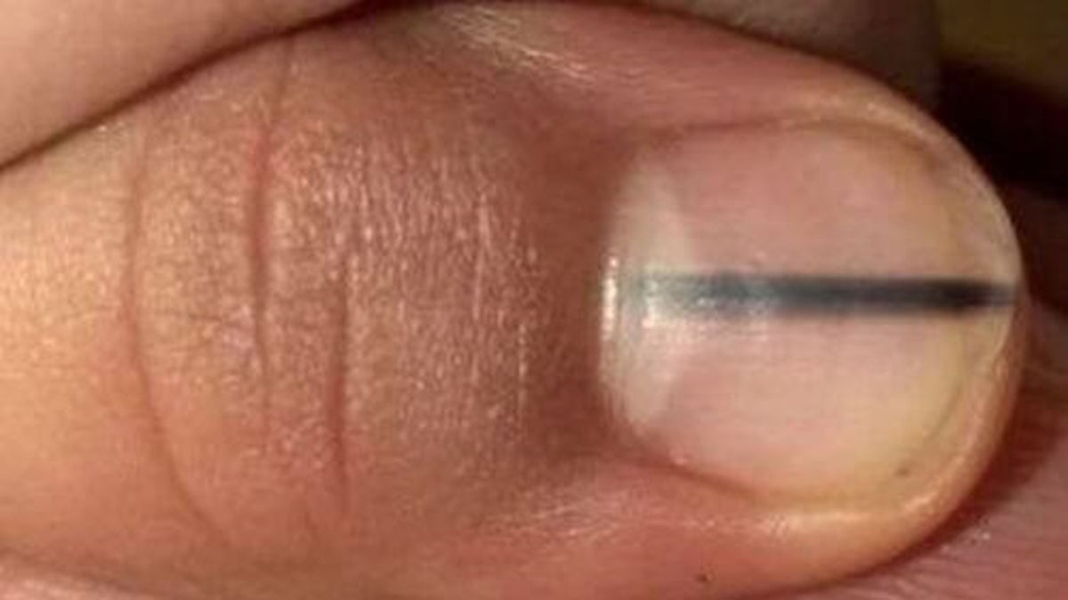svart streck på nagel