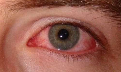 Rökning påverkar dina ögon