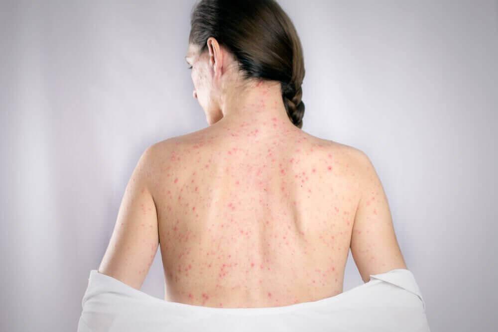 De 5 bästa kurerna för att behandla ryggherpes