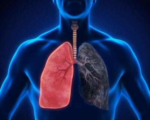 candida i lungorna symtom