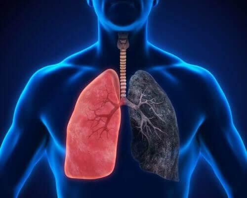 8 symtom på lunginflammation som du inte bör ignorera