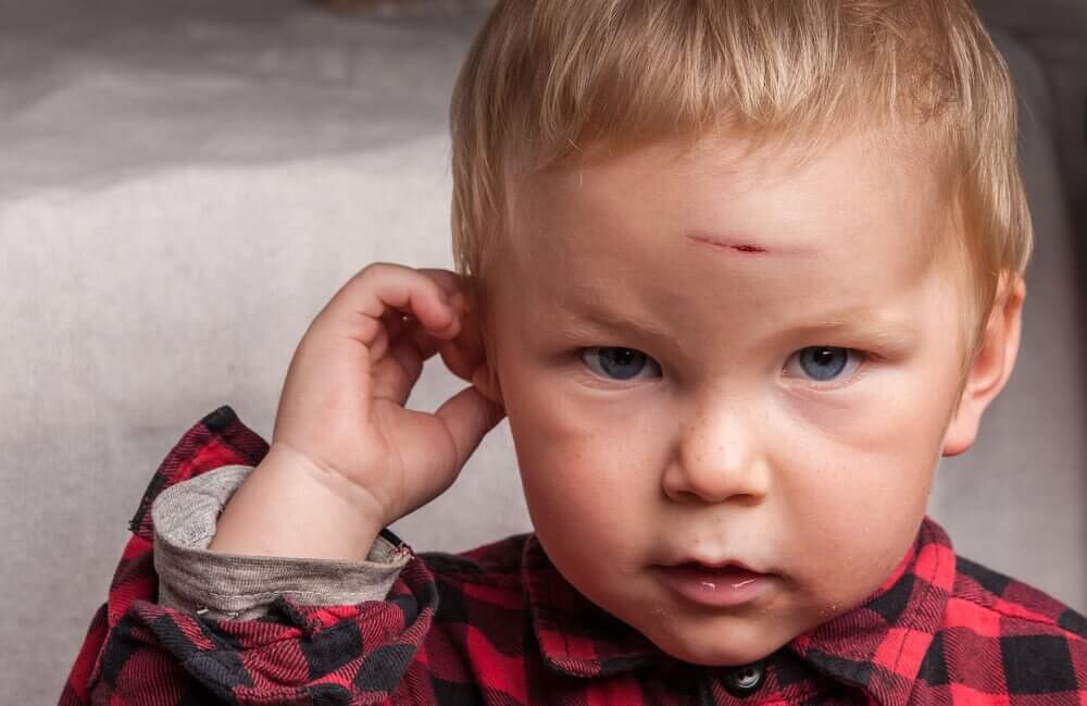 Mitt barn har slagit huvudet