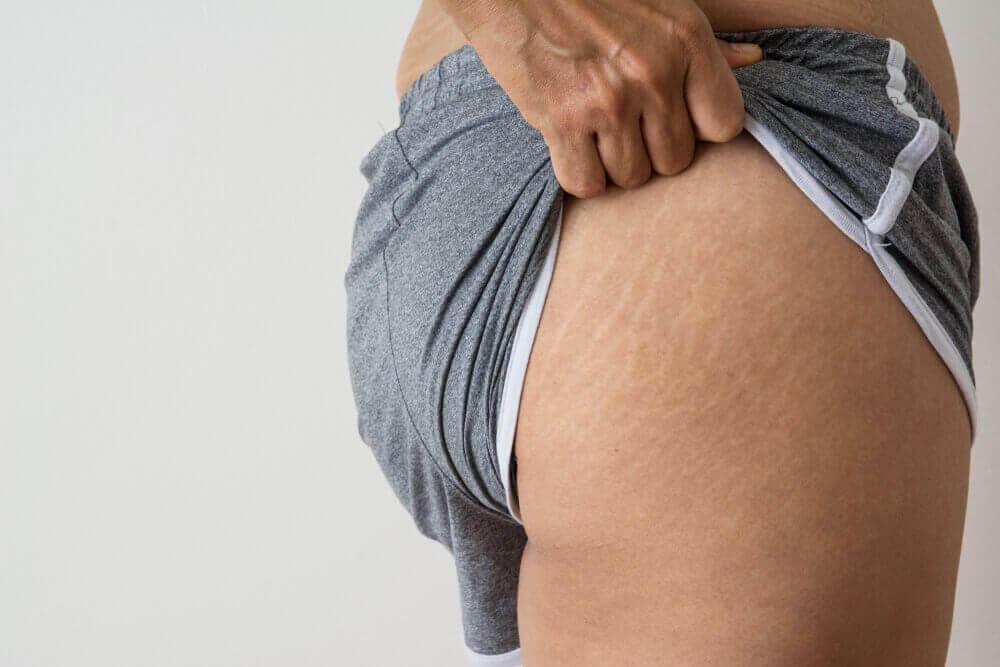 5 behandlingar med kokosolja mot rupturer i huden