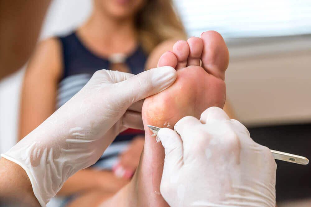 De bästa alternativen för att få bort hudvalkar på fötterna