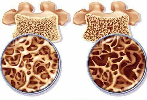 Bered kalciumrika drycker för att motverka osteoporos