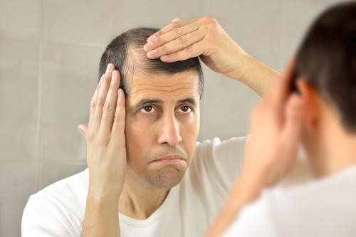Alopeci kan leda till brist på självförtroende
