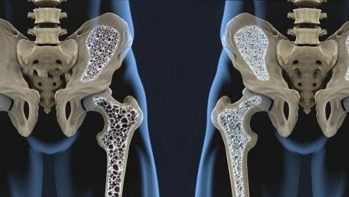 6 förebyggande kosttips mot osteoporos