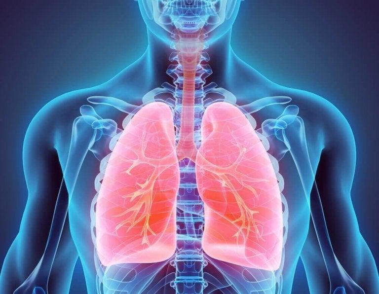 Naturliga behandlingar för att motverka bronkiektasi