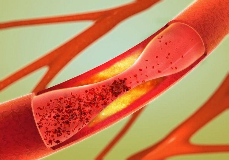 Ta hand om artärerna naturligt och effektivt