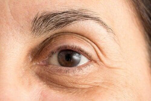 Undvik mörka ringar kring ögonen: 5 naturliga metoder