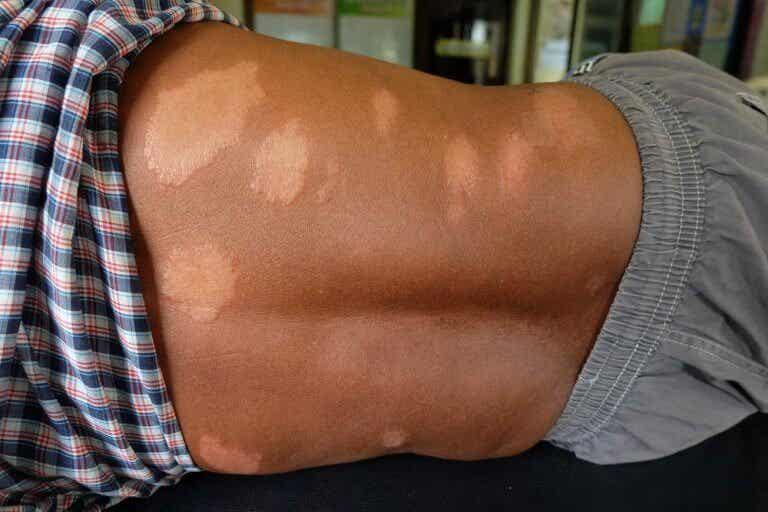 Hur man lindrar symptom på Hansens sjukdom naturligt