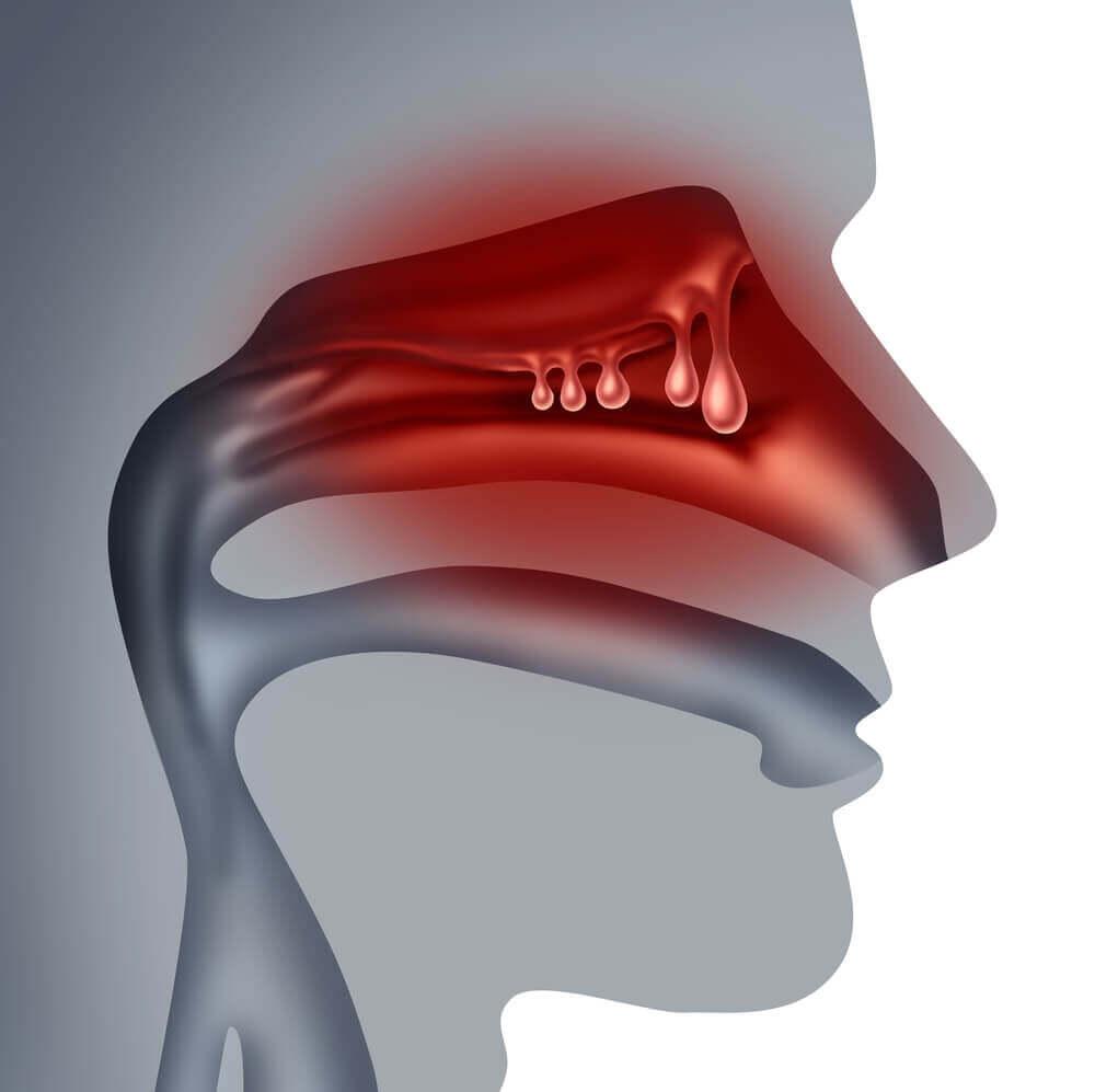 Behandla näspolyper naturligt med dessa kurer