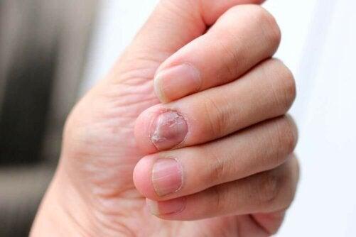 5 naturliga metoder som kan behandla nagelpsoriasis