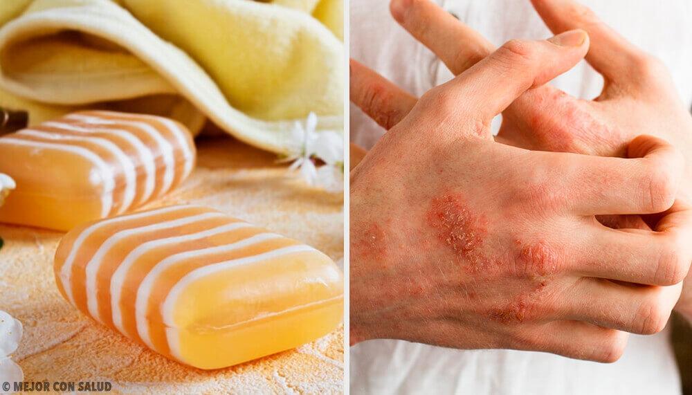 Hemgjord tvål för dermatit med glycerin, lera och bikitt
