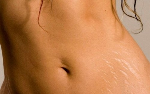Arganolja kan hjälpa till att minska hudbristningar