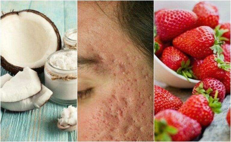 5 hemmagjorda behandlingar för att reducera ärr från akne