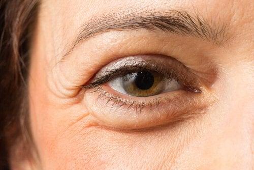Kvinna med påsar under ögonen.