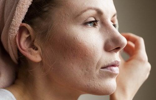 Kvinna som lider av akne.