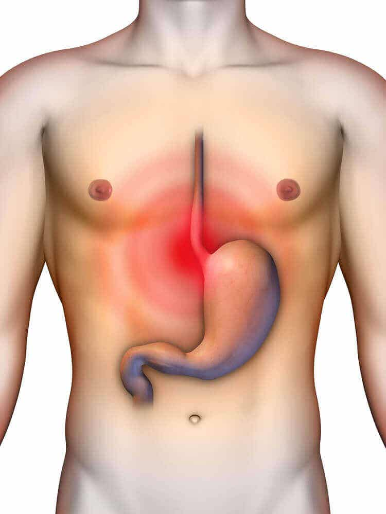 4 magsyraneutraliserande huskurer som kan lindra reflux
