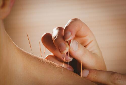 lindra ryggsmärta akupunktur