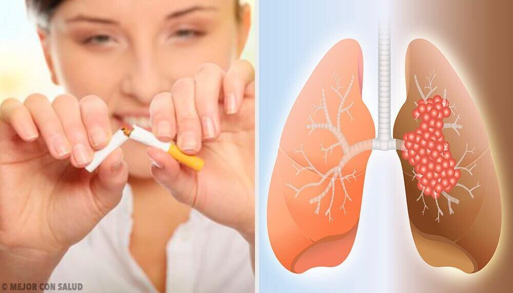 Orsaker till lungcancer och relaterad diagnos