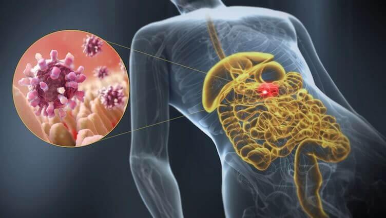 Lär dig om orsaker och symptom på gastroenterit