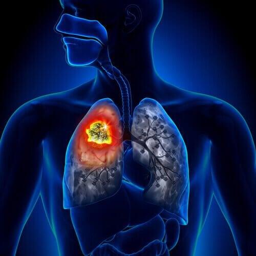 Schematisk bild av lungorna.