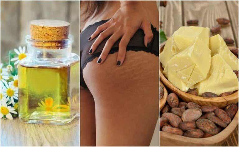 Reducera bristningar i huden med dessa 5 huskurer