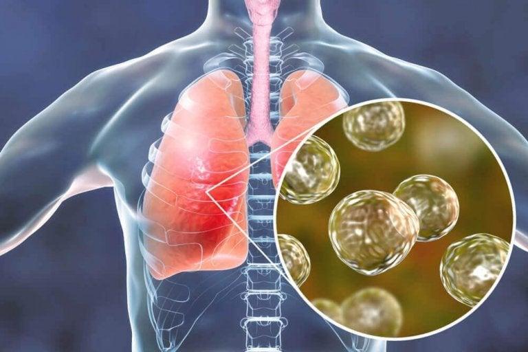 5 naturliga botemedel mot symptom på blastomykos