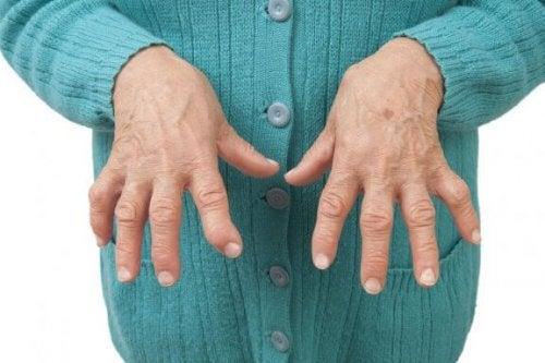 Lindra symptom på ledgångsreumatism med naturmedicin