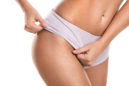 Hur man gör en nyponkräm för att minska hudbristningar