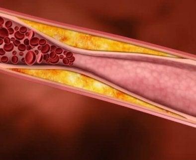 Gör det du kan för att minska högt kolesterol