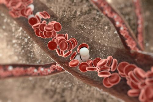 Gurkmeja rengör artärväggarna