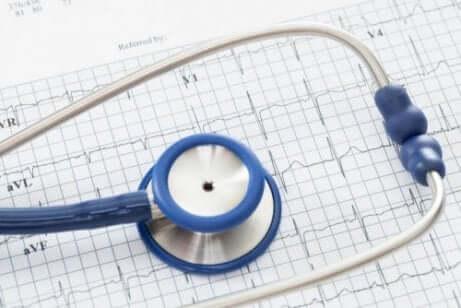 En läkare kan diagnosticera förmaksflimmer