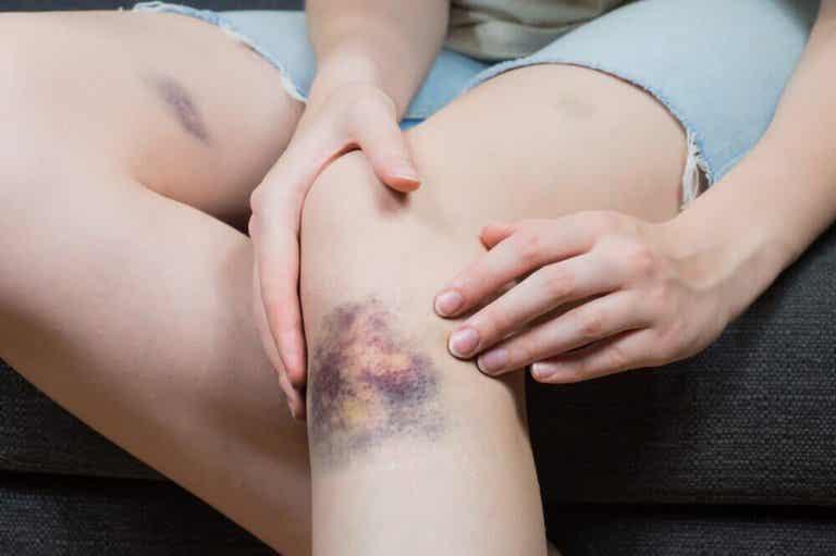 5 naturliga lösningar för att behandla blåmärken