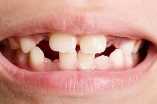 Hypodonti – avsaknad av en eller flera tänder