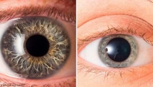 Olika typer av ögon.