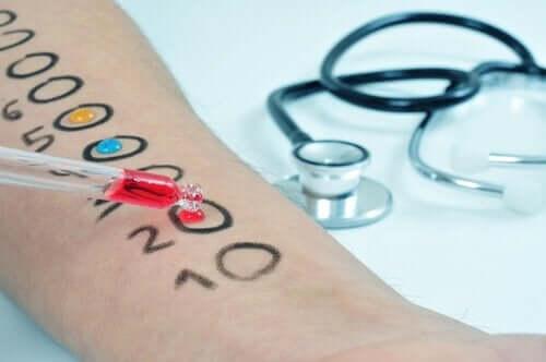 Läkare utför pricktest