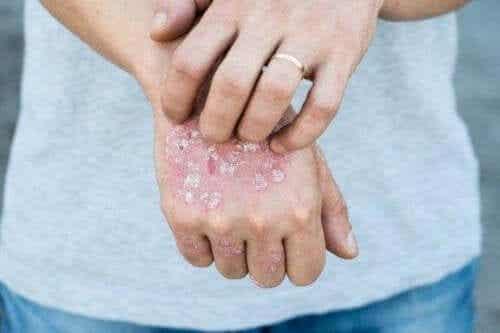 Fem effektiva och lokala örtkurer för psoriasis