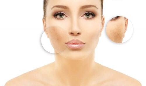 Kvinna med pigmentfläckar