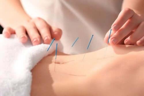 Akupunkturnålar i mage