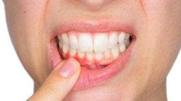 inflammation i tandköttet vad göra
