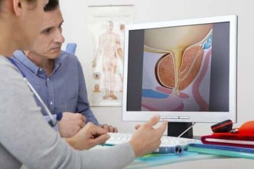 Behandlingarna för godartad prostataförstoring