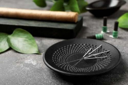 Fem fördelar med akupunktur du bör känna till