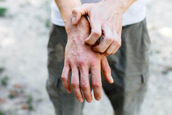 6 huskurer för att behandla kontaktallergi