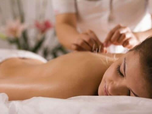 Kvinna får akupunktur