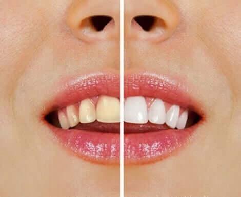 Naturliga produkter för att göra tänderna vitare