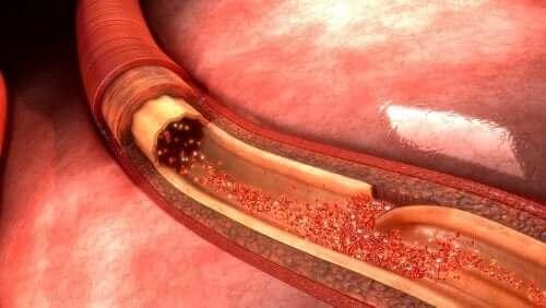 Fakta om aortadissektion: vad orsakar det?